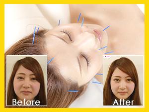 小顔・たるみ・むくみが改善される美容鍼