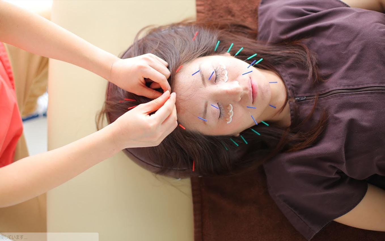 美容鍼で顔のたるみ、しわにアプローチ!