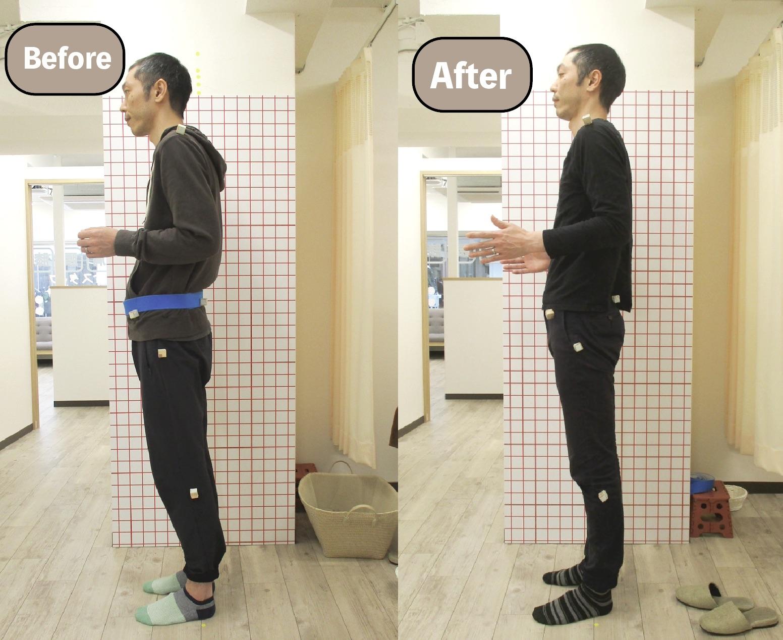 ☆猫背矯正 before/after☆